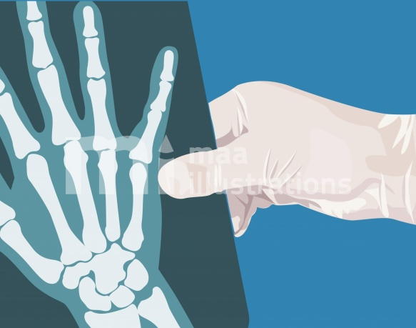Free Hand holding a X-ray film Illustration